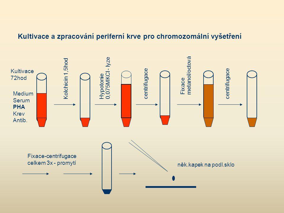 Kultivace a zpracování periferní krve pro chromozomální vyšetření Medium Serum PHA Krev Antib. Kultivace 72hod Kolchicin 1,5hod Hypotonie 0,075MKCl -