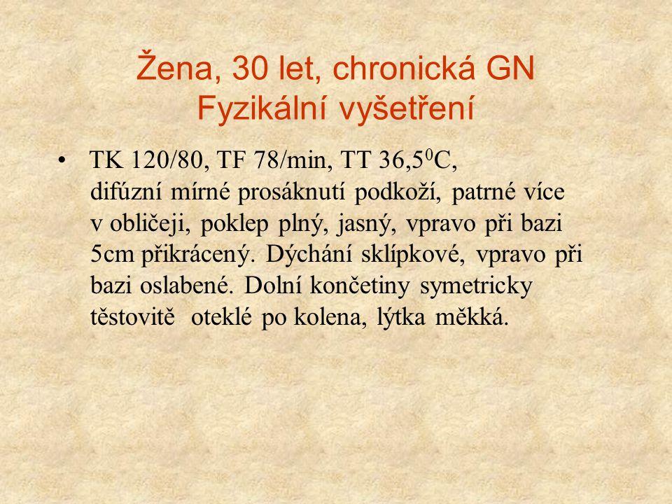Žena, 30 let, chronická GN Fyzikální vyšetření TK 120/80, TF 78/min, TT 36,5 0 C, difúzní mírné prosáknutí podkoží, patrné více v obličeji, poklep pln