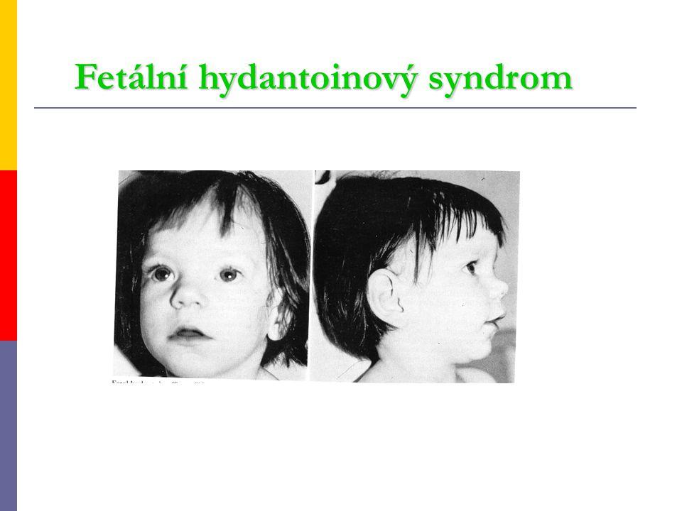 Fetální hydantoinový syndrom Fetální hydantoinový syndrom