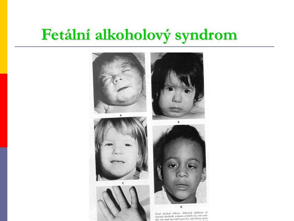 Fetální alkoholový syndrom Fetální alkoholový syndrom