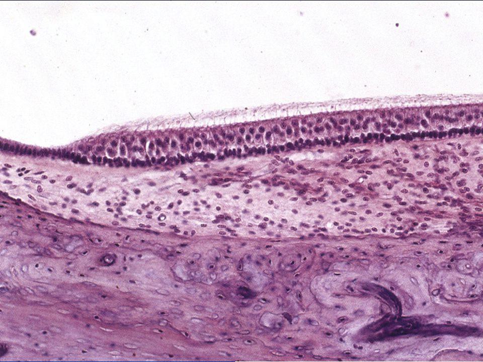 Vláskové buňky dva typy dva typy na apikálním povrchu: na apikálním povrchu: 1 kinocilie 1 kinocilie několik stereocilií několik stereocilií bazálně -