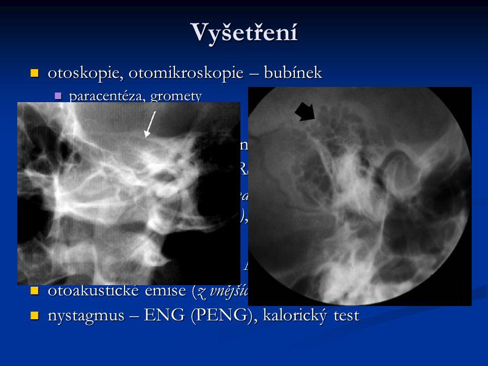 Vyšetření otoskopie, otomikroskopie – bubínek otoskopie, otomikroskopie – bubínek paracentéza, gromety paracentéza, gromety ladičkové zkoušky ladičkové zkoušky vestibulookulární reflex – nystagmus vestibulookulární reflex – nystagmus vestibulospinální reflexy (Rombergův, Unterbergerův test) vestibulospinální reflexy (Rombergův, Unterbergerův test) rtg (projekce Stenversova – meatus acusticus intenrus, Schüllerova – proc.