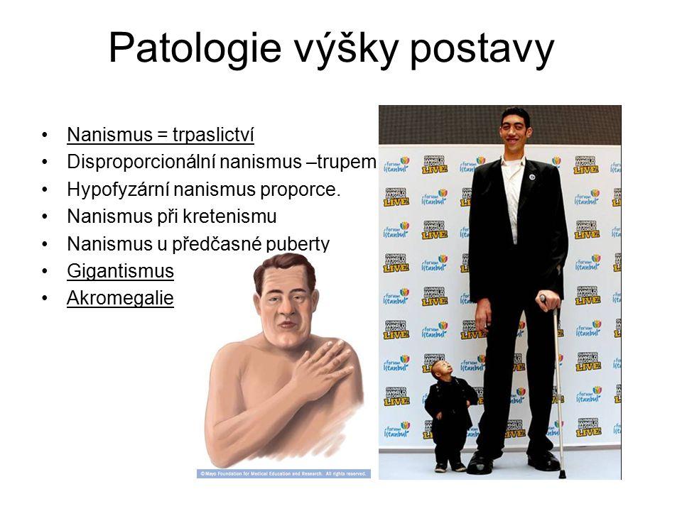 Patologie výšky postavy Nanismus = trpaslictví Disproporcionální nanismus –trupem, velkou hlavou. Hypofyzární nanismus proporce. Nanismus při kretenis