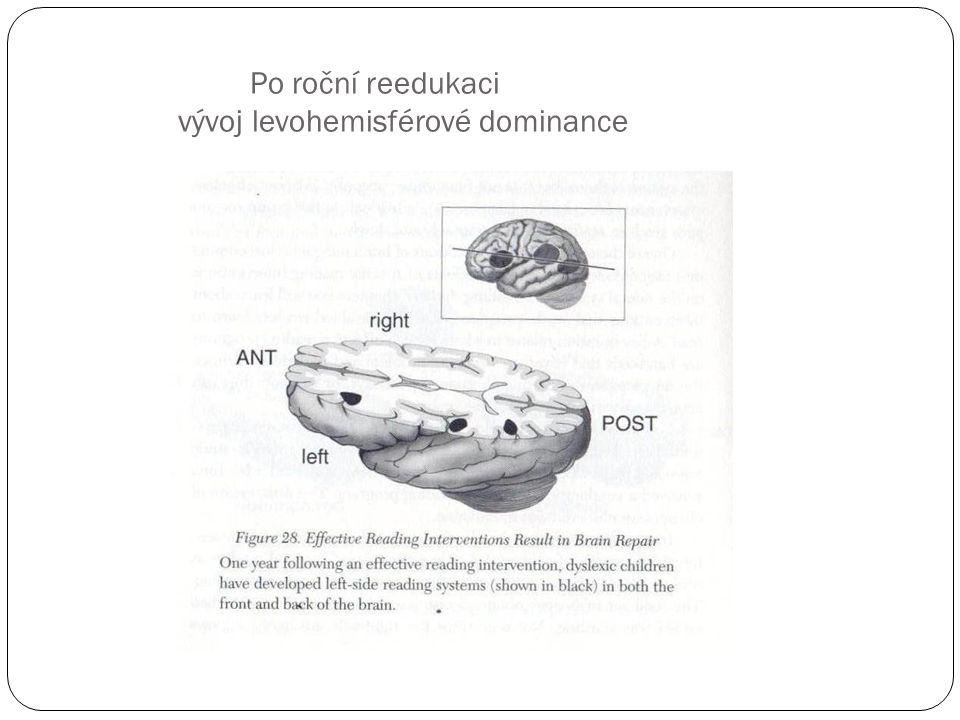 Po roční reedukaci vývoj levohemisférové dominance