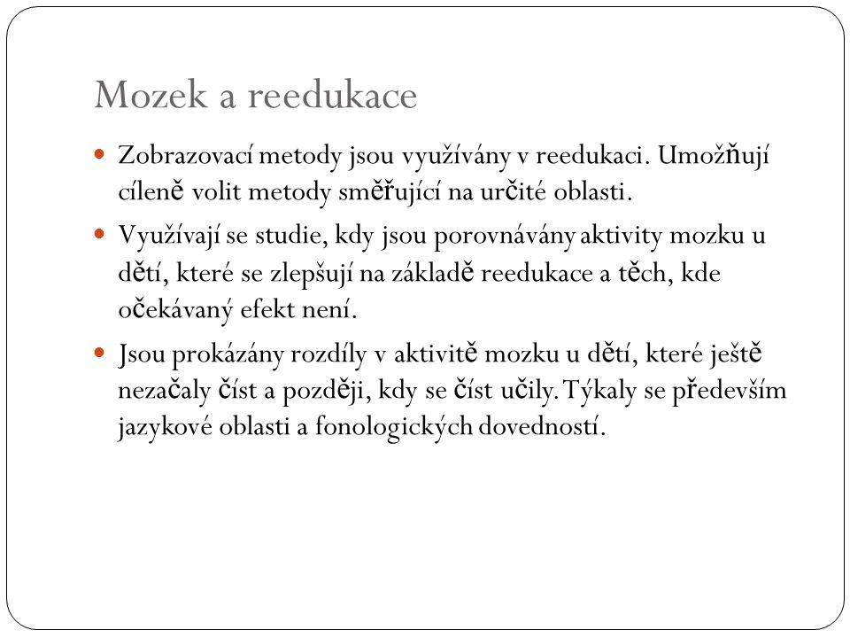 Rozdíly u d ě tí s rizikem dyslexie Výzkumy ve Finsku prokázaly, že mozek novorozence s rizikem dyslexie (výskyt dyslexie v rodině) reaguje odlišně od mozku běžné populace.
