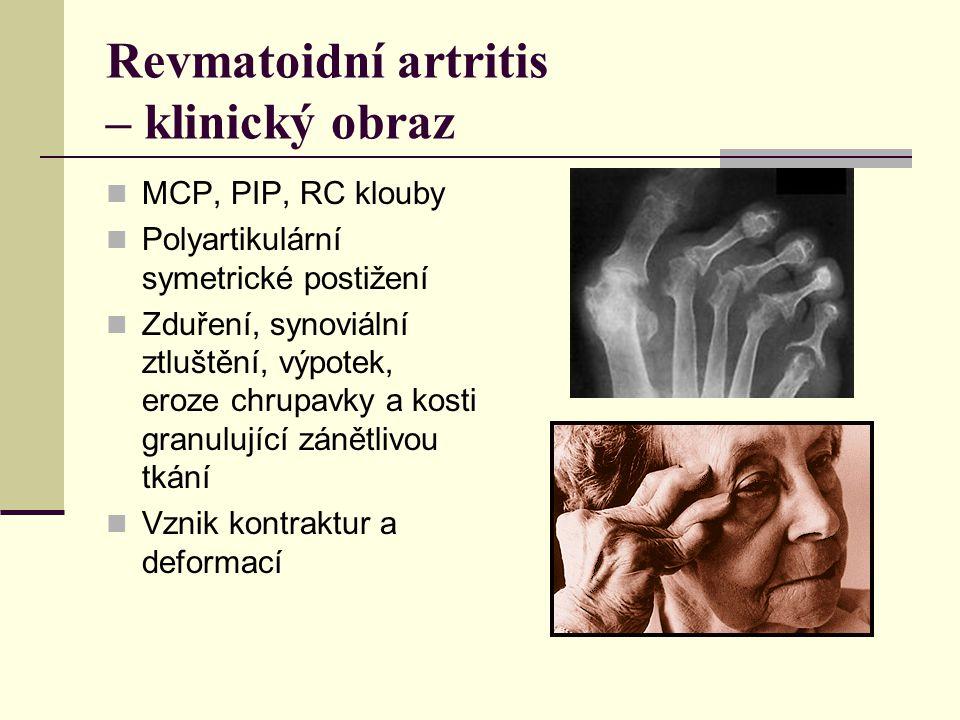 Revmatoidní artritis – klinický obraz MCP, PIP, RC klouby Polyartikulární symetrické postižení Zduření, synoviální ztluštění, výpotek, eroze chrupavky a kosti granulující zánětlivou tkání Vznik kontraktur a deformací