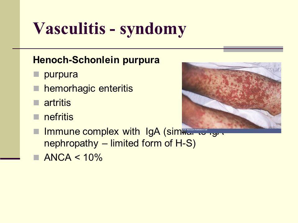 Vasculitis - syndomy Henoch-Schonlein purpura purpura hemorhagic enteritis artritis nefritis Immune complex with IgA (similar to IgA nephropathy – limited form of H-S) ANCA < 10%