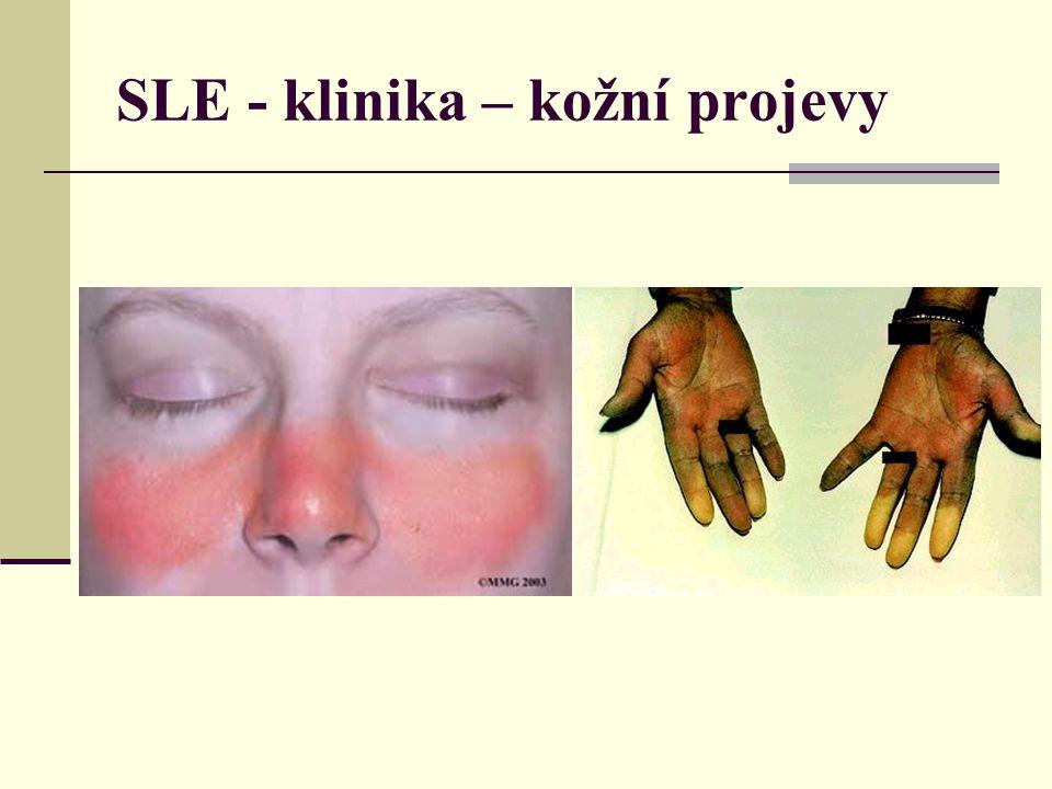 SLE - klinika Perikarditida, myokarditida, endokarditida Pleuritida, intersticiální alveolitida Vaskulitida v CNS – tromby, mikroinfarkty, epilepsie Lupusové antikoagulans – prodloužení APTT, antikardiolipinové protilátky – trombozy, leukopenie, trombopenie, anemie Polyarteritis, deformity, imitace revmatoidní artritis Intersticiální nefiritis, mezangiální glomerulonefritis (GN), fokálně progredující GN, difůzní proliferativní GN, membranozní GN Amyloidoza