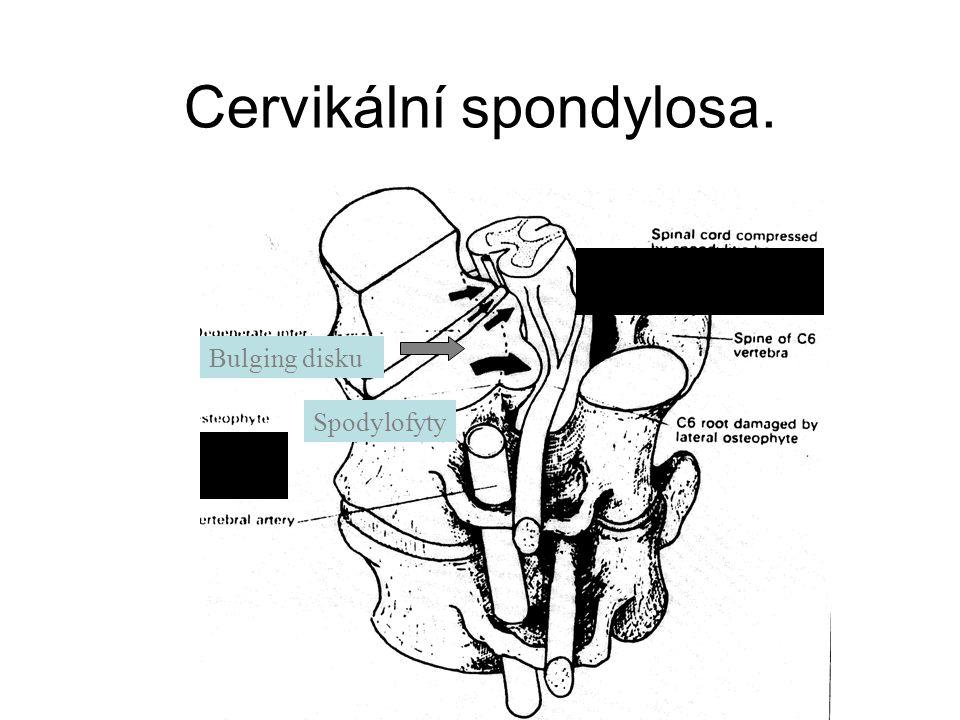 Cervikální spondylosa. Bulging disku Spodylofyty