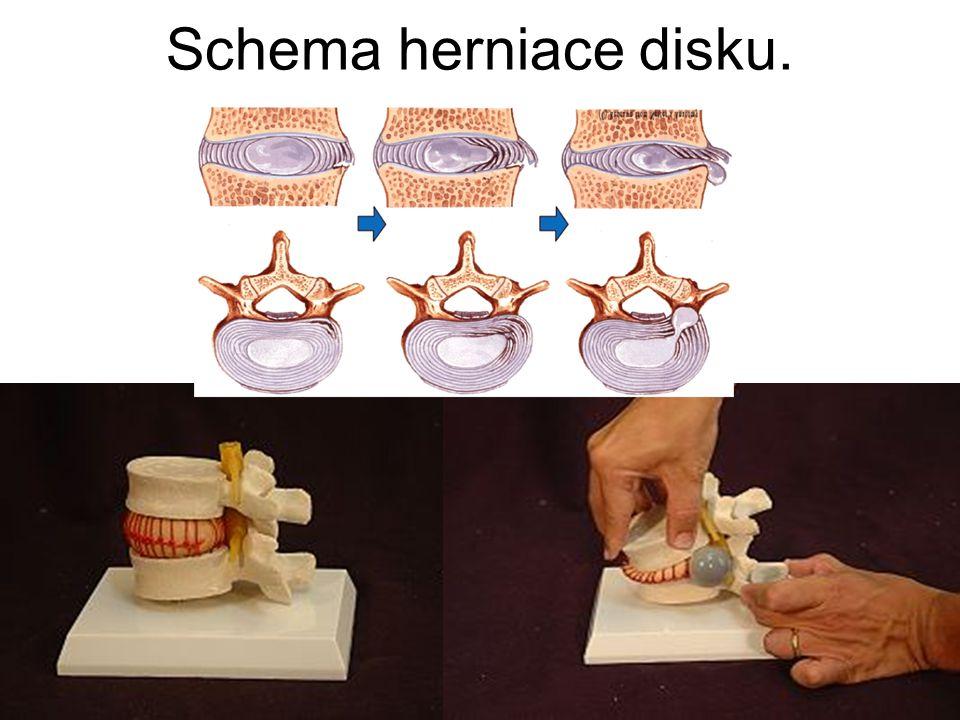 Schema herniace disku.