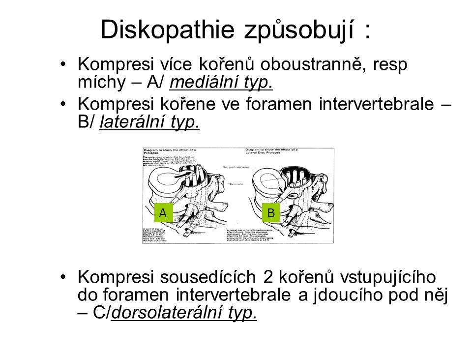 Diskopathie způsobují : Kompresi více kořenů oboustranně, resp míchy – A/ mediální typ. Kompresi kořene ve foramen intervertebrale – B/ laterální typ.