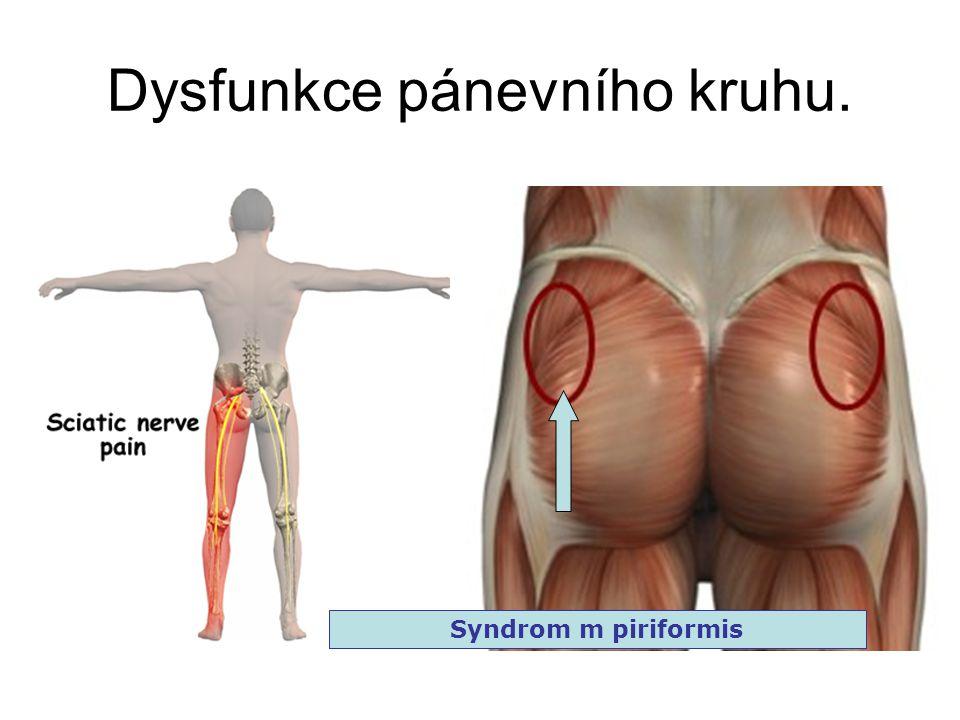 Dysfunkce pánevního kruhu. Syndrom m piriformis