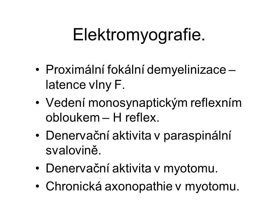 Elektromyografie. Proximální fokální demyelinizace – latence vlny F. Vedení monosynaptickým reflexním obloukem – H reflex. Denervační aktivita v paras