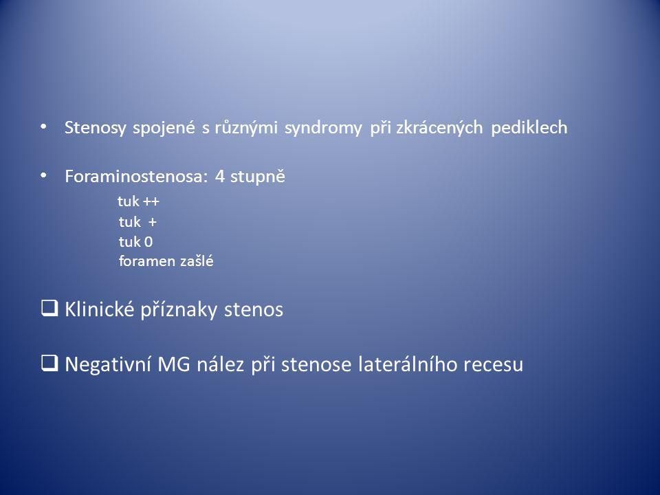 Stenosy spojené s různými syndromy při zkrácených pediklech Foraminostenosa: 4 stupně tuk ++ tuk + tuk 0 foramen zašlé  Klinické příznaky stenos  Ne