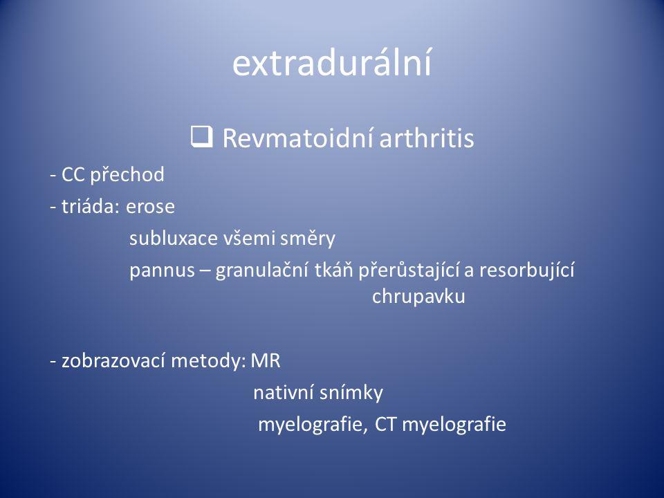 extradurální  Revmatoidní arthritis - CC přechod - triáda: erose subluxace všemi směry pannus – granulační tkáň přerůstající a resorbující chrupavku