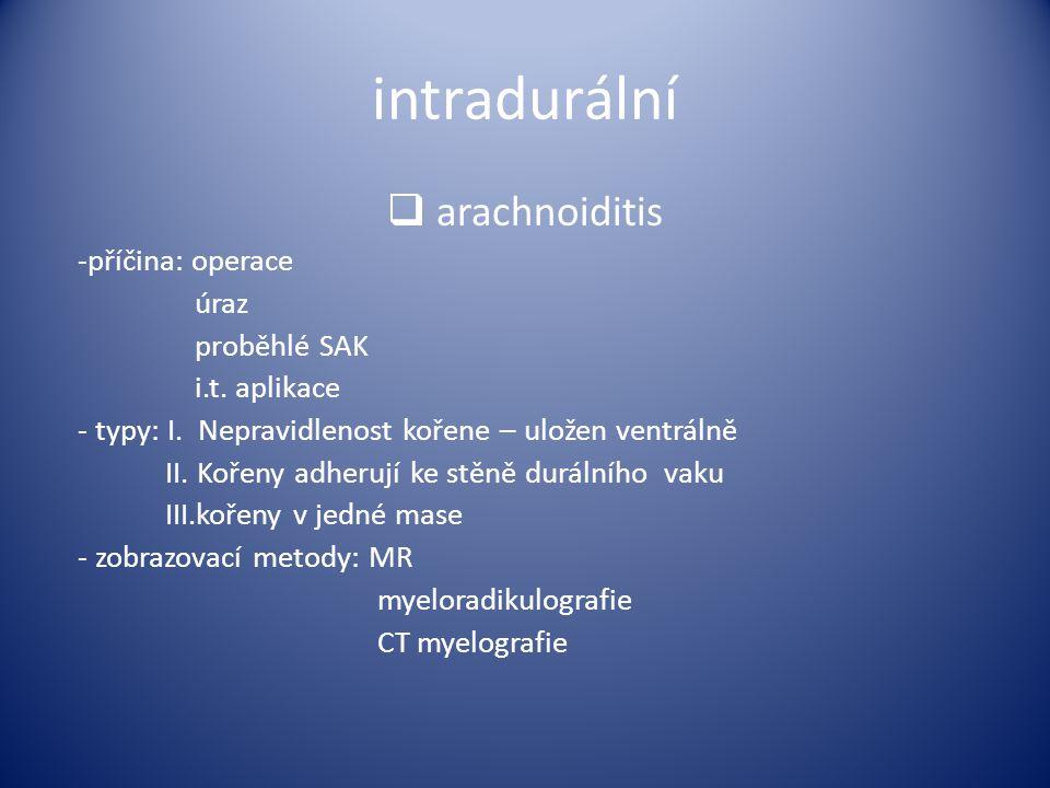 intradurální  arachnoiditis -příčina: operace úraz proběhlé SAK i.t. aplikace - typy: I. Nepravidlenost kořene – uložen ventrálně II. Kořeny adherují
