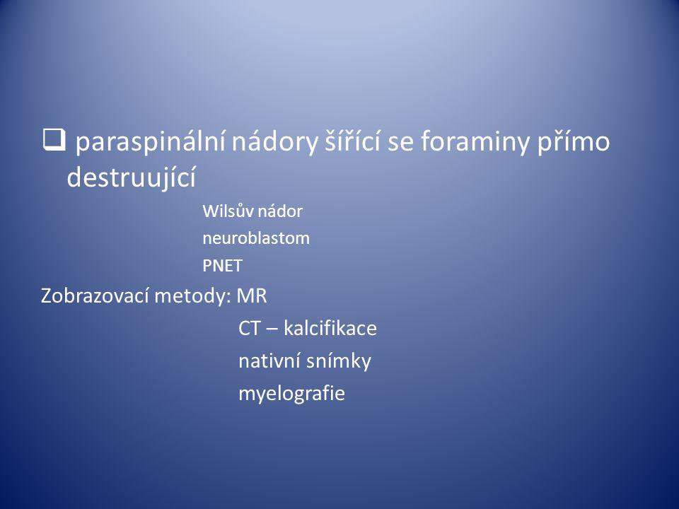  paraspinální nádory šířící se foraminy přímo destruující Wilsův nádor neuroblastom PNET Zobrazovací metody: MR CT – kalcifikace nativní snímky myelo