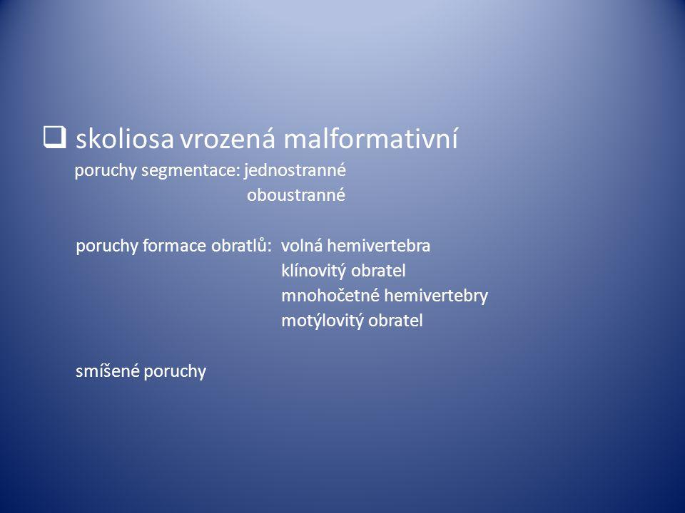  skoliosa vrozená malformativní poruchy segmentace: jednostranné oboustranné poruchy formace obratlů: volná hemivertebra klínovitý obratel mnohočetné