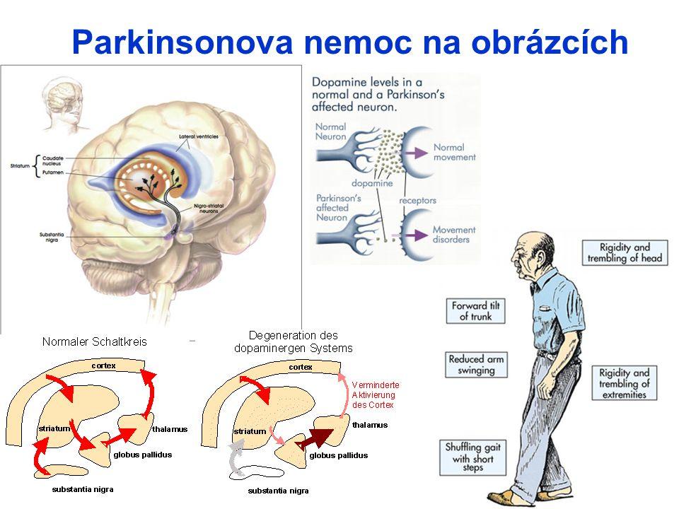 17 Parkinsonova nemoc na obrázcích