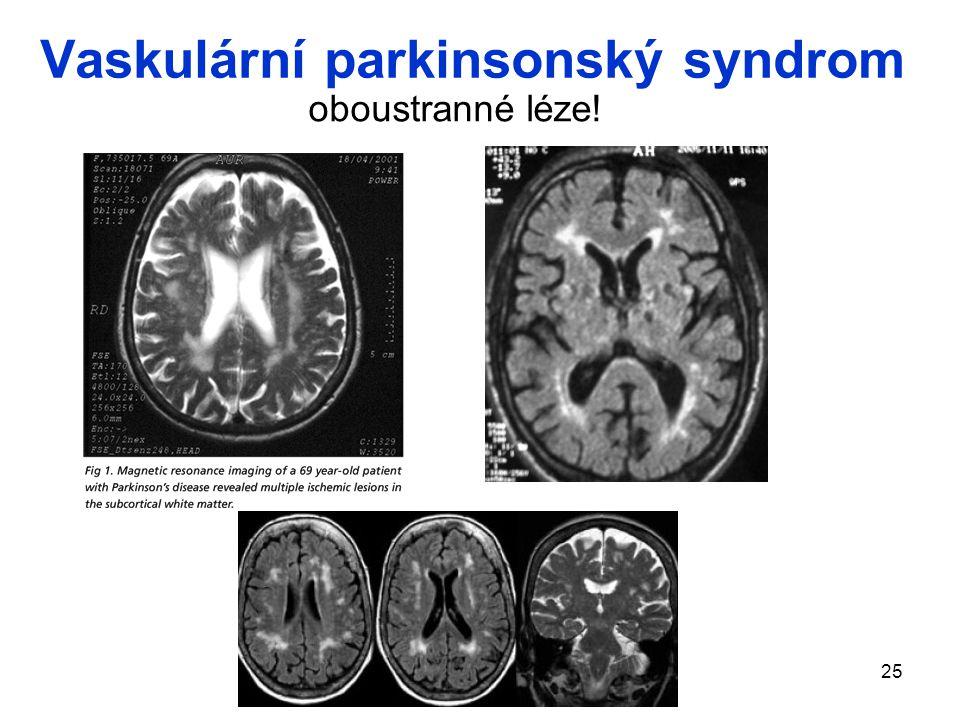 25 Vaskulární parkinsonský syndrom oboustranné léze!