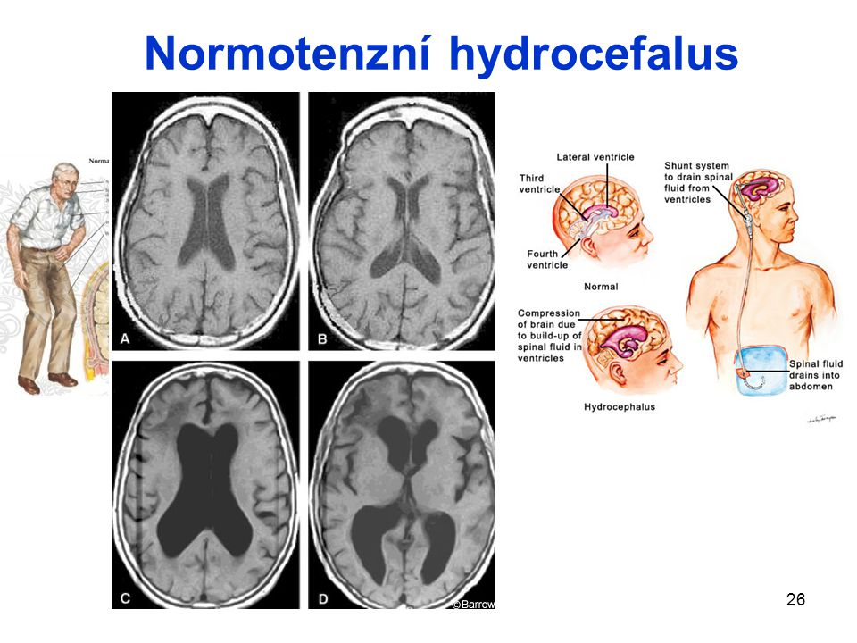 26 Normotenzní hydrocefalus