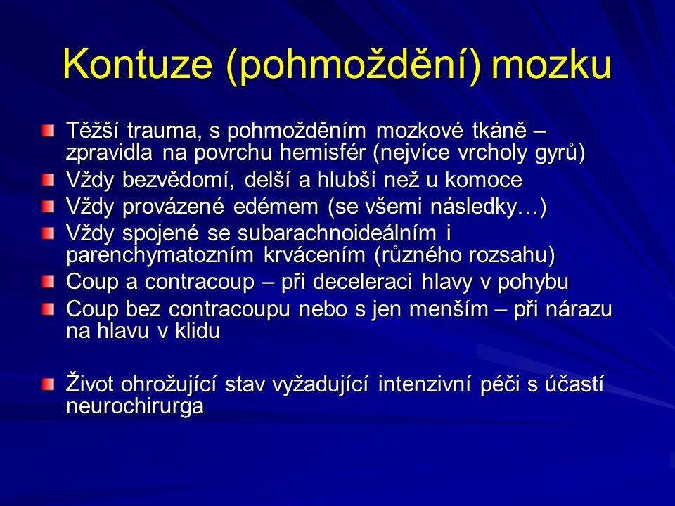 Kontuze (pohmoždění) mozku Těžší trauma, s pohmožděním mozkové tkáně – zpravidla na povrchu hemisfér (nejvíce vrcholy gyrů) Vždy bezvědomí, delší a hlubší než u komoce Vždy provázené edémem (se všemi následky…) Vždy spojené se subarachnoideálním i parenchymatozním krvácením (různého rozsahu) Coup a contracoup – při deceleraci hlavy v pohybu Coup bez contracoupu nebo s jen menším – při nárazu na hlavu v klidu Život ohrožující stav vyžadující intenzivní péči s účastí neurochirurga
