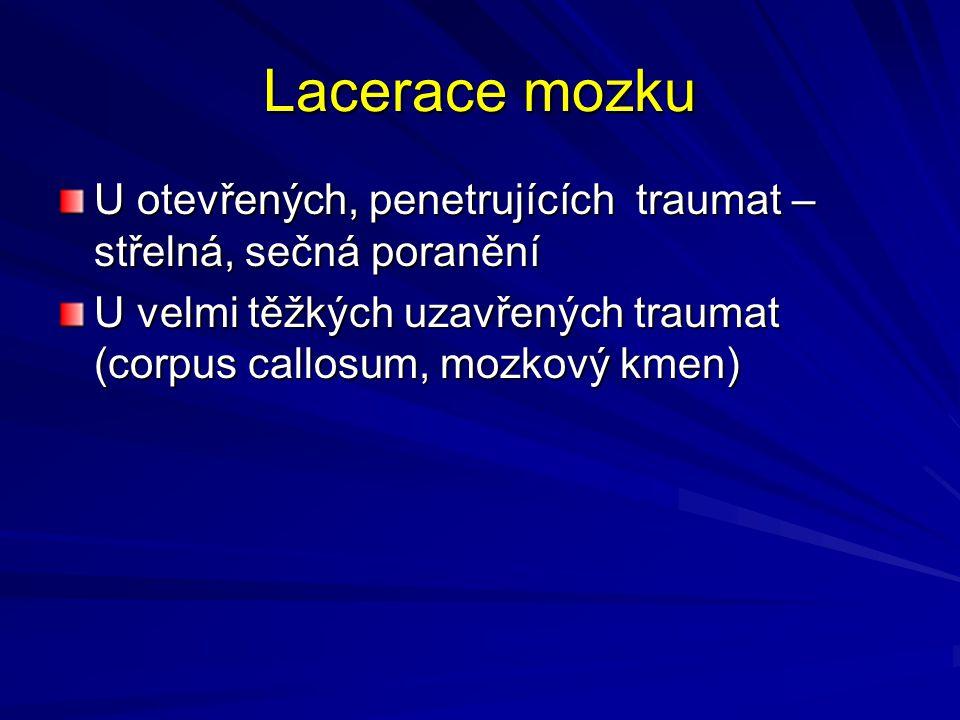 Lacerace mozku U otevřených, penetrujících traumat – střelná, sečná poranění U velmi těžkých uzavřených traumat (corpus callosum, mozkový kmen)