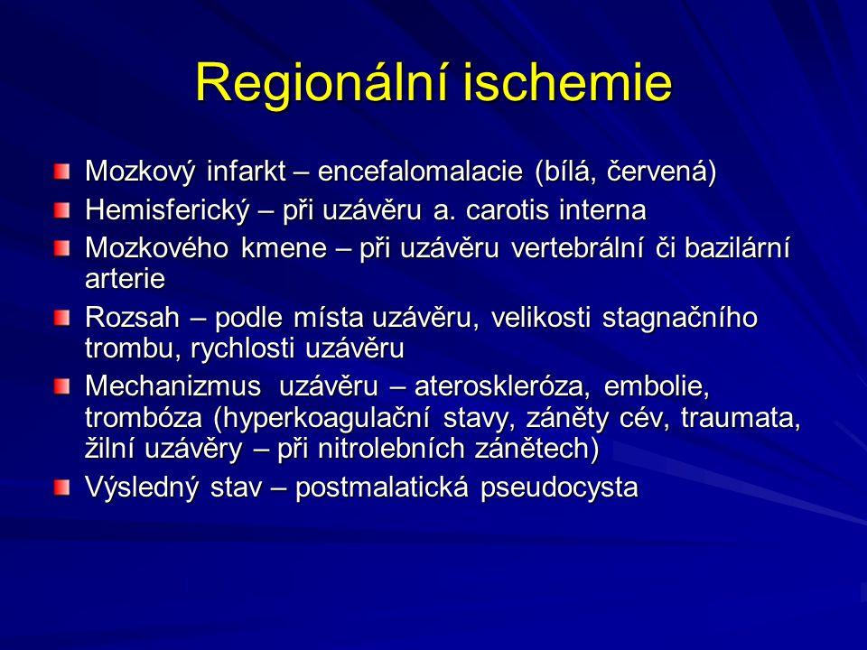 Regionální ischemie Mozkový infarkt – encefalomalacie (bílá, červená) Hemisferický – při uzávěru a. carotis interna Mozkového kmene – při uzávěru vert
