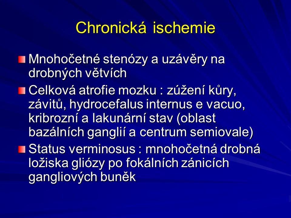 Chronická ischemie Mnohočetné stenózy a uzávěry na drobných větvích Celková atrofie mozku : zúžení kůry, závitů, hydrocefalus internus e vacuo, kribrozní a lakunární stav (oblast bazálních ganglií a centrum semiovale) Status verminosus : mnohočetná drobná ložiska gliózy po fokálních zánicích gangliových buněk
