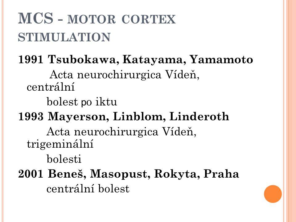 MCS - MOTOR CORTEX STIMULATION 1991 Tsubokawa, Katayama, Yamamoto Acta neurochirurgica Vídeň, centrální bolest p o iktu 1993 Mayerson, Linblom, Linder
