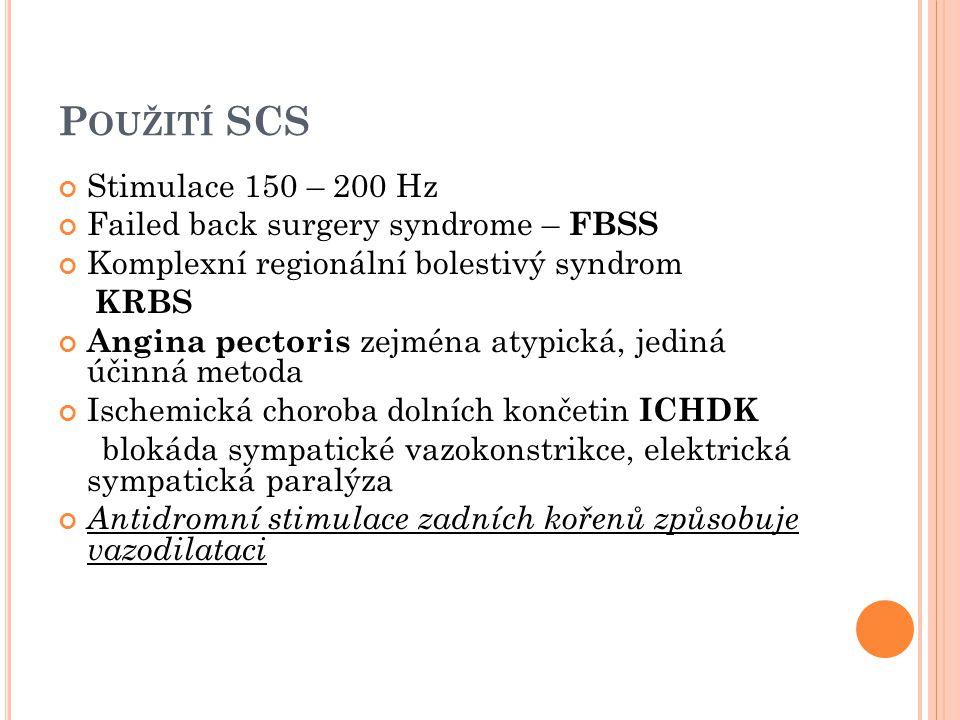 P OUŽITÍ SCS Stimulace 150 – 200 Hz Failed back surgery syndrome – FBSS Komplexní regionální bolestivý syndrom KRBS Angina pectoris zejména atypická,