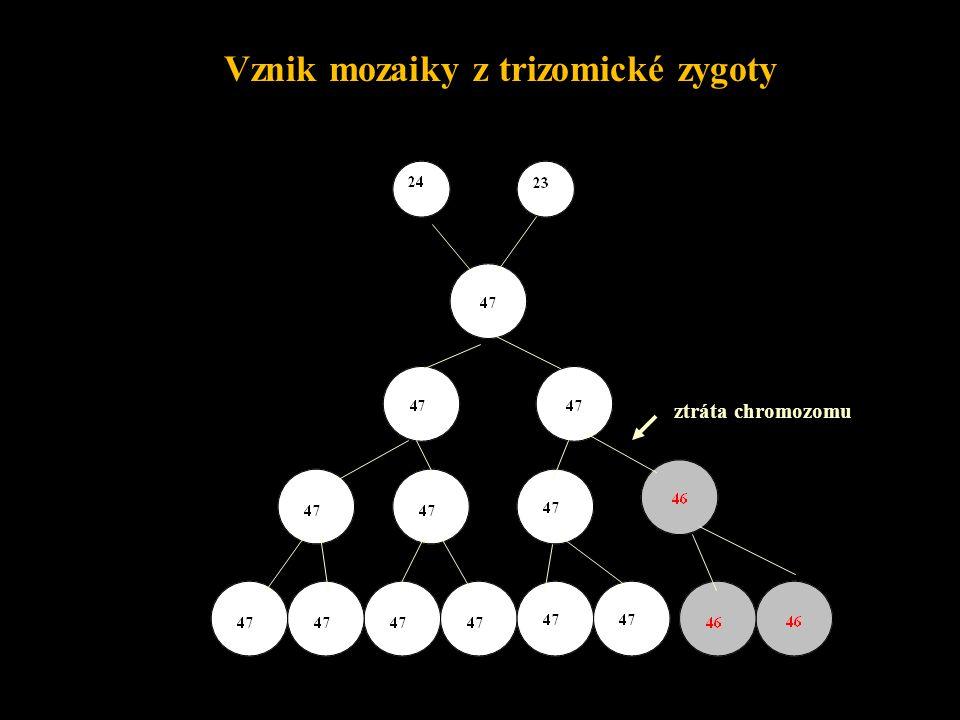 ztráta X chromozomu Vznik monozomie X - postzygotický vznik Mozaika normální a monozomické linie