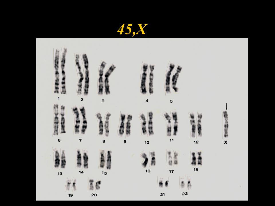 Klinické příznaky TS w malý vzrůst w sterilita - degenerace ovarií - vyjímka=i(Xq), Xp- w chybí sekundární pohlavní znaky w nemenstruuje w ev.pterygium coli w nízká vlasová hranice w štítovitý hrudník w u novorozenců - otoky končetin !!.