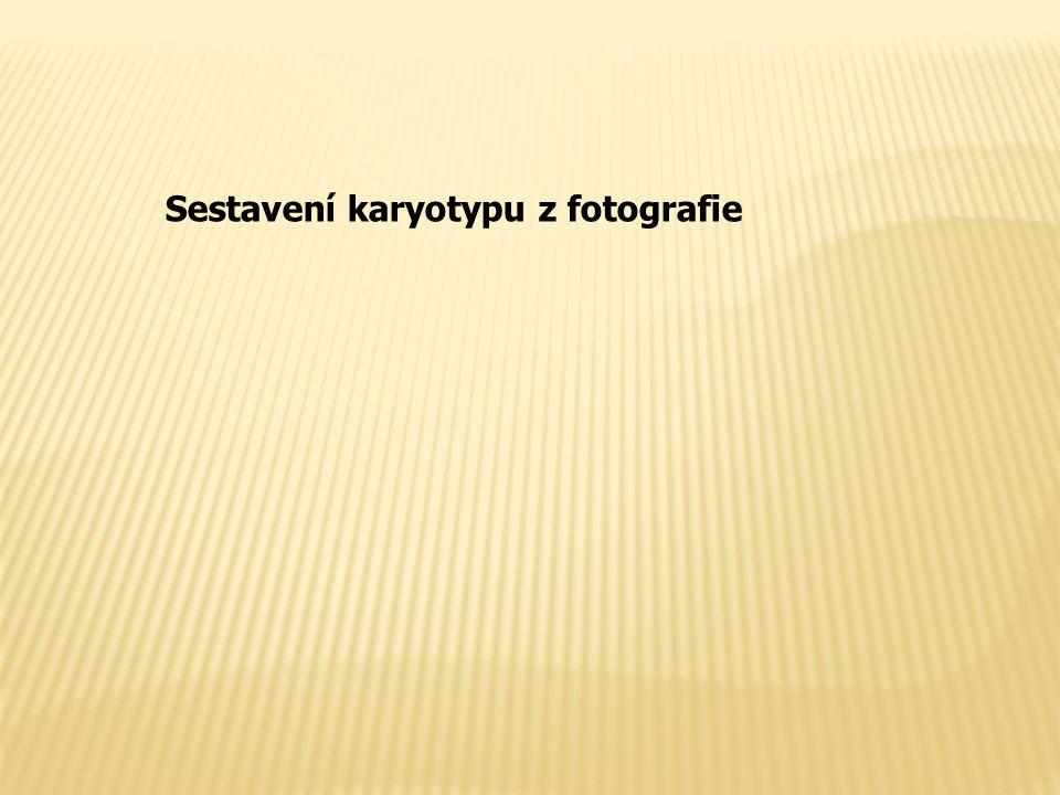 Sestavení karyotypu z fotografie