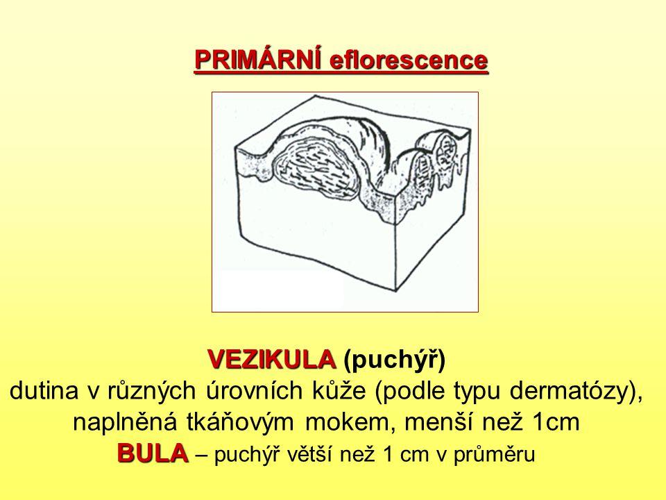 VEZIKULA BULA VEZIKULA (puchýř) dutina v různých úrovních kůže (podle typu dermatózy), naplněná tkáňovým mokem, menší než 1cm BULA – puchýř větší než