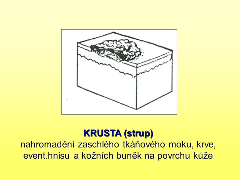 KRUSTA (strup) nahromadění zaschlého tkáňového moku, krve, event.hnisu a kožních buněk na povrchu kůže
