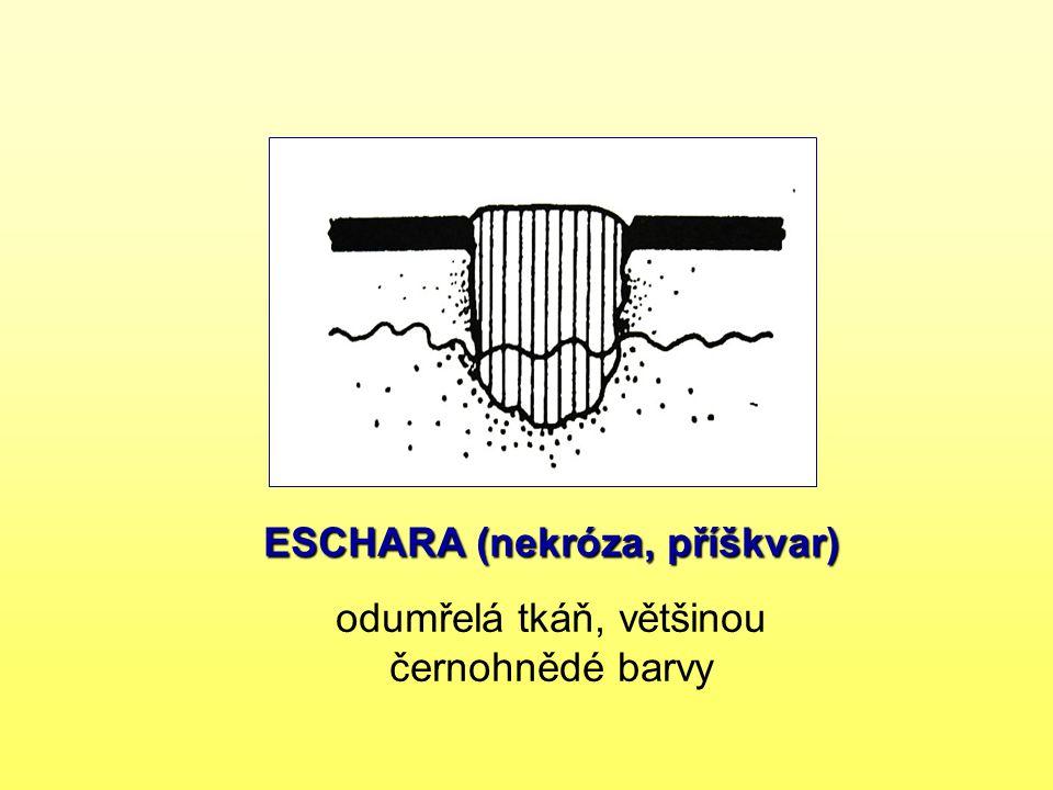 ESCHARA (nekróza, příškvar) odumřelá tkáň, většinou černohnědé barvy