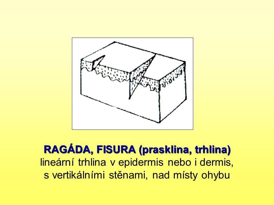 RAGÁDA, FISURA (prasklina, trhlina) RAGÁDA, FISURA (prasklina, trhlina) lineární trhlina v epidermis nebo i dermis, s vertikálními stěnami, nad místy