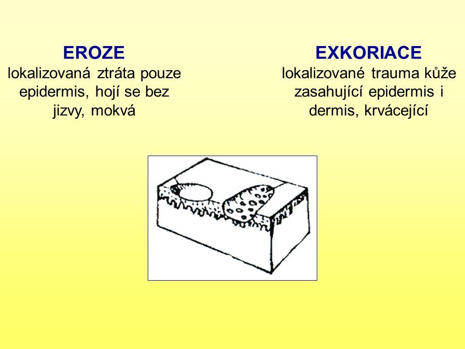 EROZE lokalizovaná ztráta pouze epidermis, hojí se bez jizvy, mokvá EXKORIACE lokalizované trauma kůže zasahující epidermis i dermis, krvácející