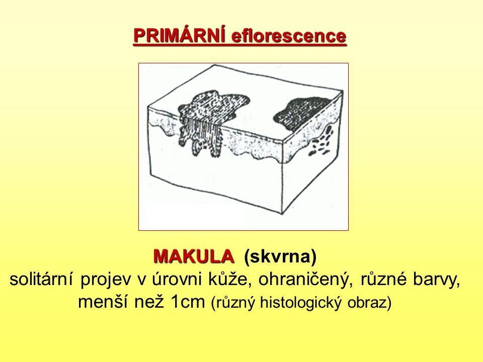 MAKULA MAKULA (skvrna) solitární projev v úrovni kůže, ohraničený, různé barvy, menší než 1cm (různý histologický obraz) PRIMÁRNÍ eflorescence