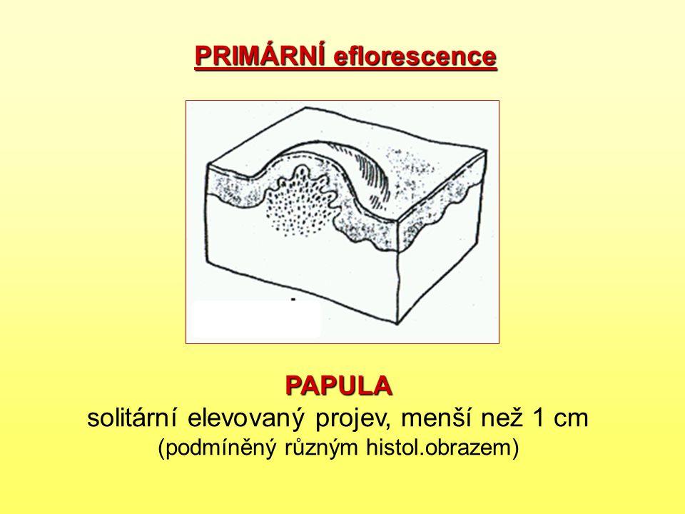 PAPULA PAPULA solitární elevovaný projev, menší než 1 cm (podmíněný různým histol.obrazem) PRIMÁRNÍ eflorescence