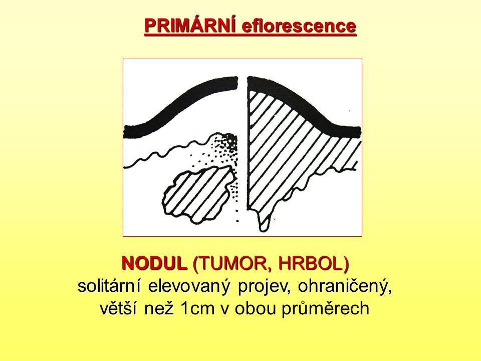 NODUL (TUMOR, HRBOL) solitární elevovaný projev, ohraničený, větší než NODUL (TUMOR, HRBOL) solitární elevovaný projev, ohraničený, větší než 1cm v ob