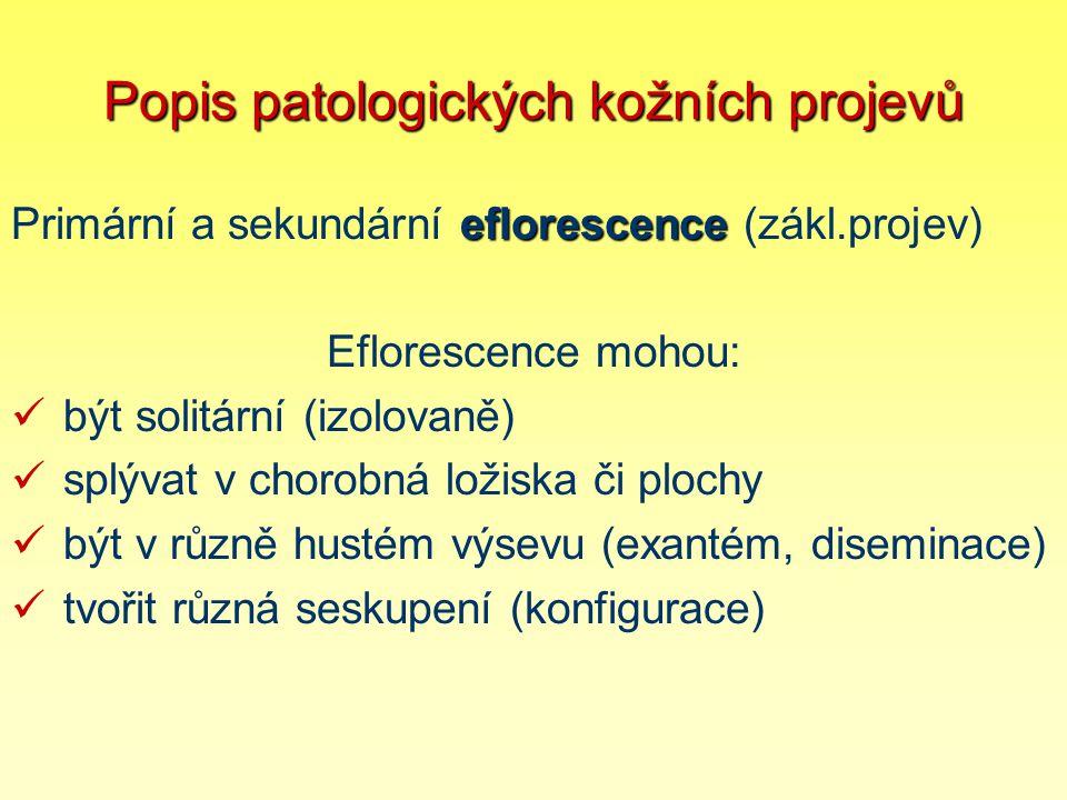 Popis patologických kožních projevů eflorescence Primární a sekundární eflorescence (zákl.projev) Eflorescence mohou: být solitární (izolovaně) splýva