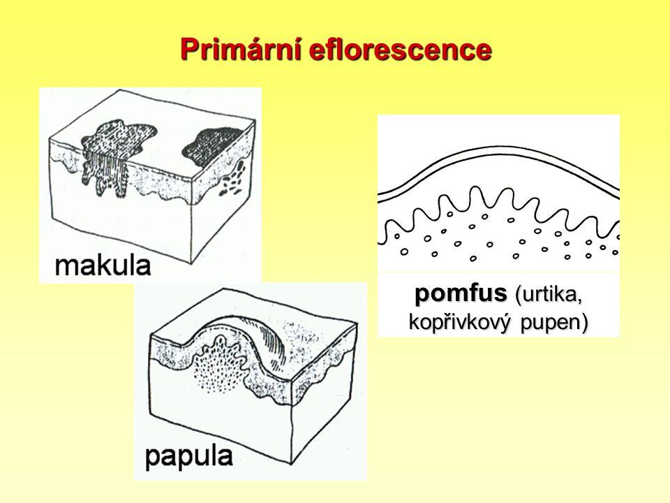 Primární eflorescence pomfus (urtika, kopřivkový pupen)