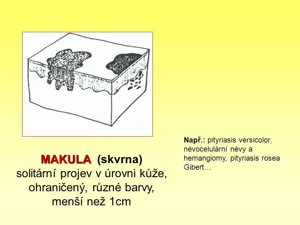 MAKULA MAKULA (skvrna) solitární projev v úrovni kůže, ohraničený, různé barvy, menší než 1cm Např.: pityriasis versicolor, névocelulární névy a heman