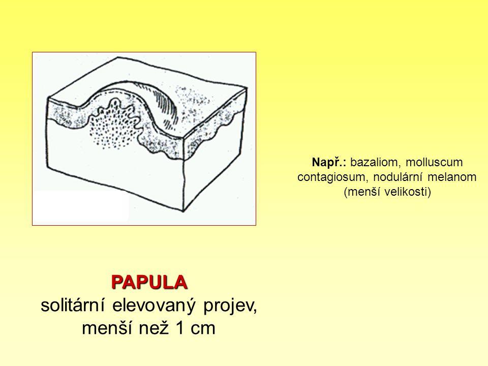 PAPULA PAPULA solitární elevovaný projev, menší než 1 cm Např.: bazaliom, molluscum contagiosum, nodulární melanom (menší velikosti)