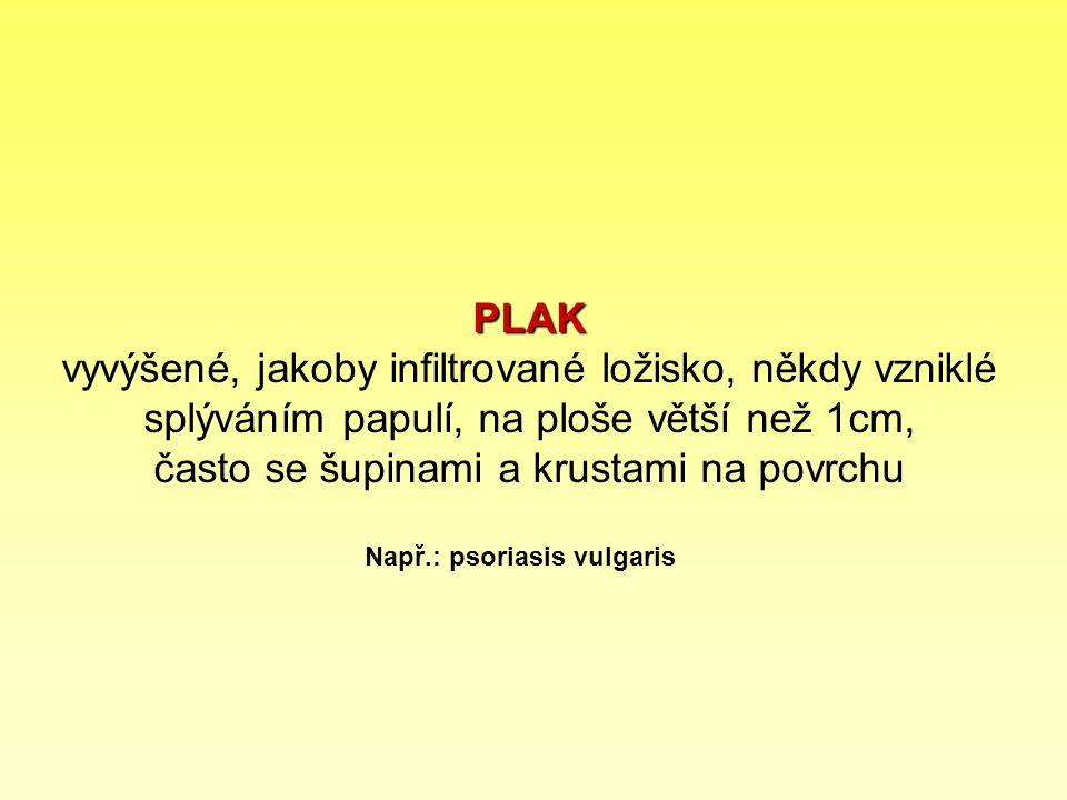 PLAK PLAK vyvýšené, jakoby infiltrované ložisko, někdy vzniklé splýváním papulí, na ploše větší než 1cm, často se šupinami a krustami na povrchu Např.