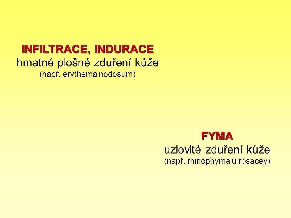 INFILTRACE, INDURACE INFILTRACE, INDURACE hmatné plošné zduření kůže (např. erythema nodosum) FYMA FYMA uzlovité zduření kůže (např. rhinophyma u rosa