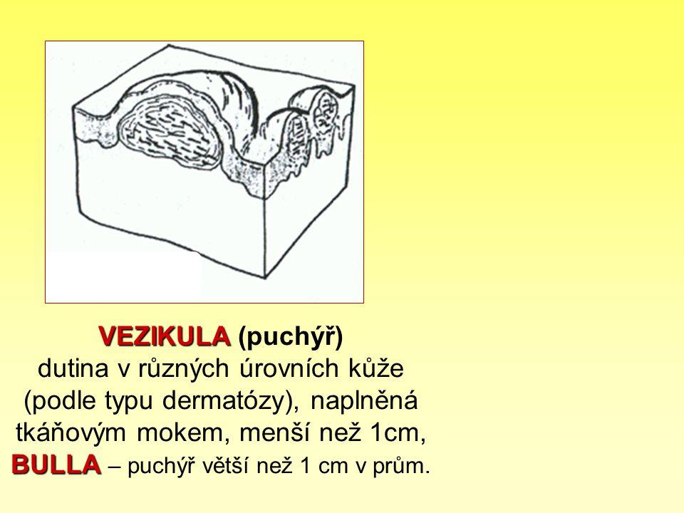 VEZIKULA BULLA VEZIKULA (puchýř) dutina v různých úrovních kůže (podle typu dermatózy), naplněná tkáňovým mokem, menší než 1cm, BULLA – puchýř větší n