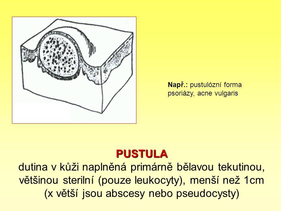 PUSTULA PUSTULA dutina v kůži naplněná primárně bělavou tekutinou, většinou sterilní (pouze leukocyty), menší než 1cm (x větší jsou abscesy nebo pseud